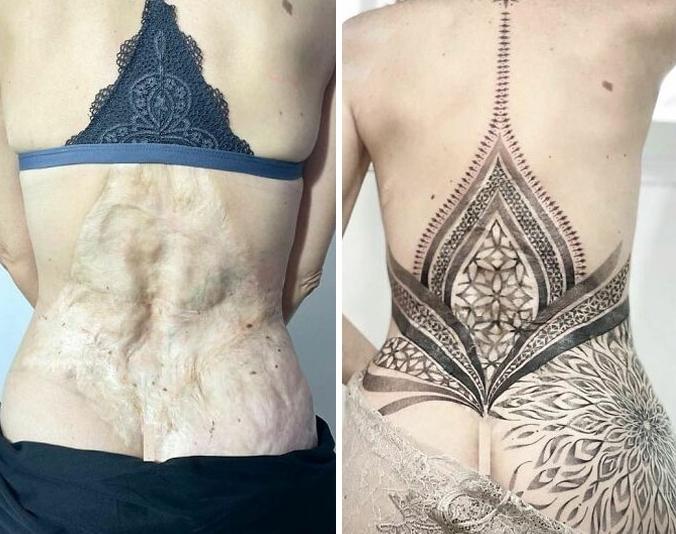 татуировка по шраму